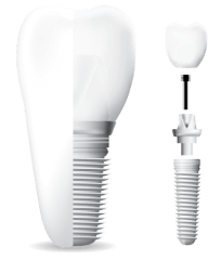 Illustration of a dental implant showing the completed implant and the implant, abutment, and crown