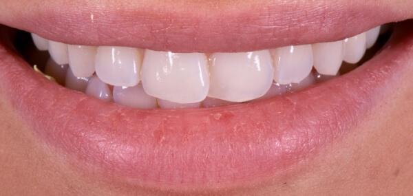 A closeup of a patient's smile