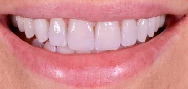Close up of a patient's smile after cosmetic dentistry