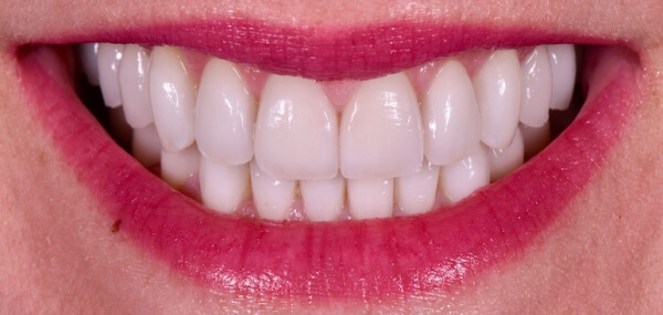 Closeup of a patient's smile after treatment at at Warren Family Dentistry