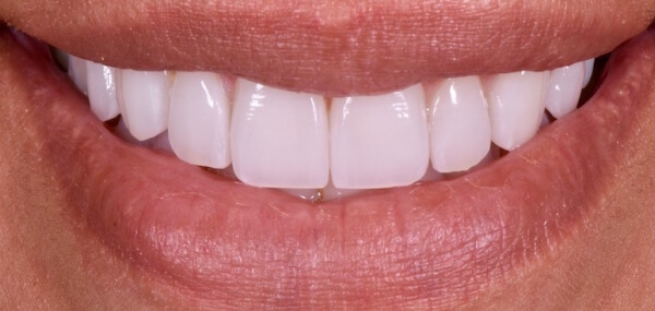 Closeup of a smile after cosmetic dentistry