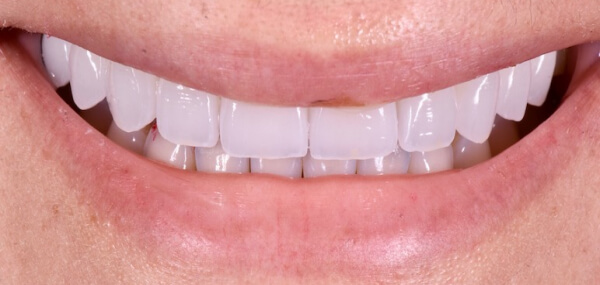 Closeup of a patient's smile after cosmetic dentistry