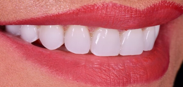 Closeup of a patient's smile after treatment at Warren Family Dentistry