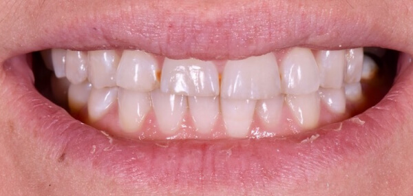 Closeup of a patient's smile before treatment at Warren Family Dentistry