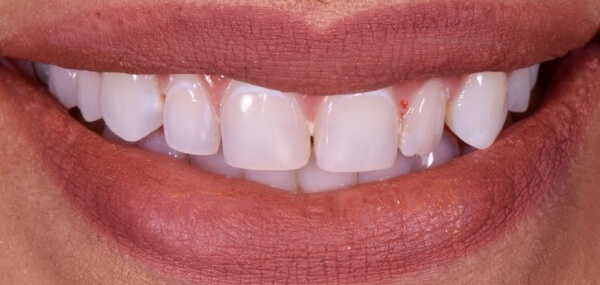 Close up of a patient's smile before treatment at Warren Family Dentistry