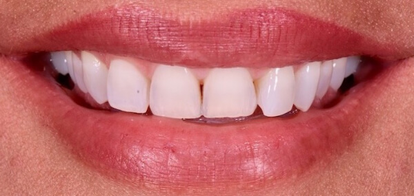 A closeup of a patient's mouth before treatment at Warren Family Dentistry