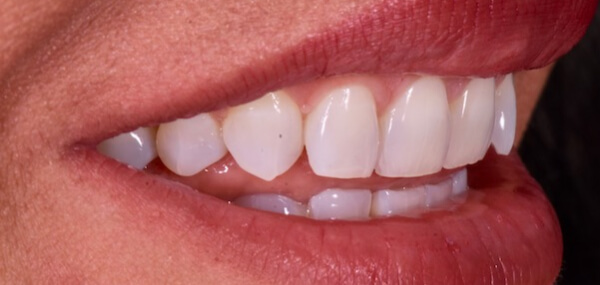 A closeup of a patient's mouth from the site before treatment at Warren Family Dentistry