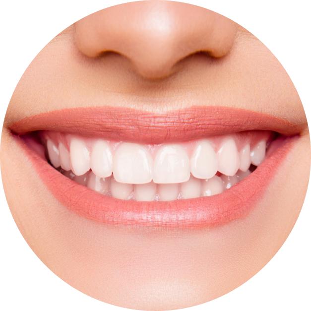 A closeup of a woman's bright white smile