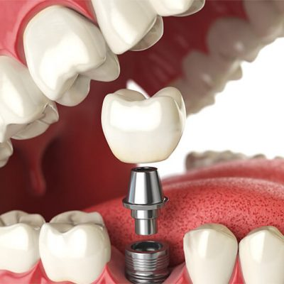 Illustration showing a dental implant in the lower jaw with the abutment and crown hovering above