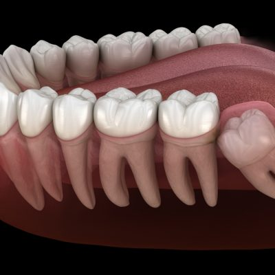Illustration of a lower jaw showing an impacted wisdom tooth that needs to be removed